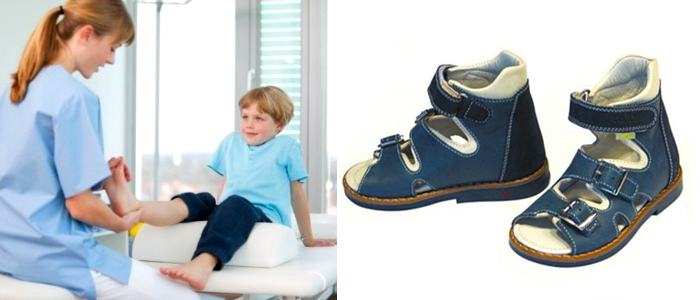 детская ортопедическая обувь по показаниям врача